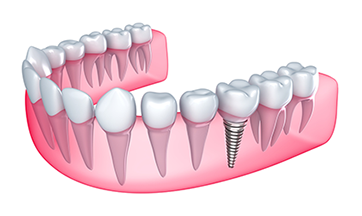 Dental Implants - Buford, GA
